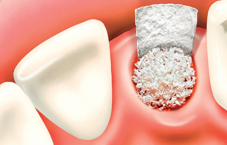 what are bone grafts | arcadia ca dentist